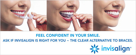 Invisalign - Virtually Invisible Braces